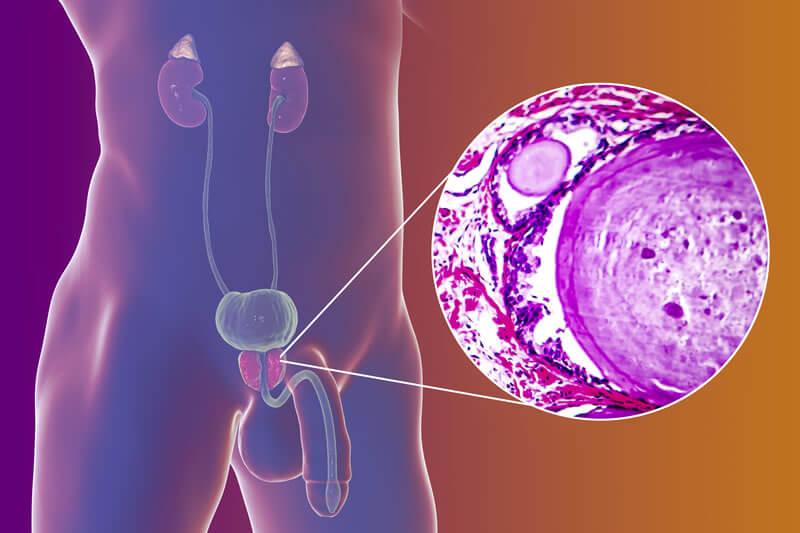 adenom prostata