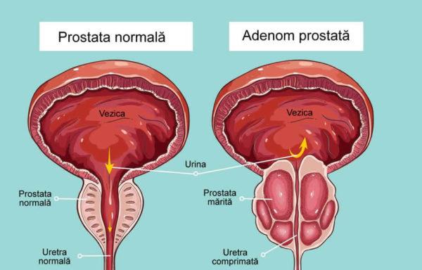 Sustinator vezica in afectiuni de prostata