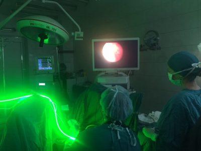 aparatura laser verde varna